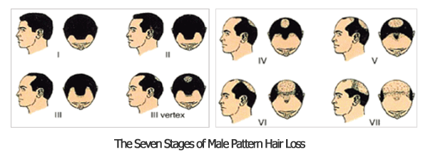 Men Hair Loss Causes 