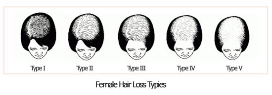 What causes hair loss or thinning hair in women? Causes of female hair ...